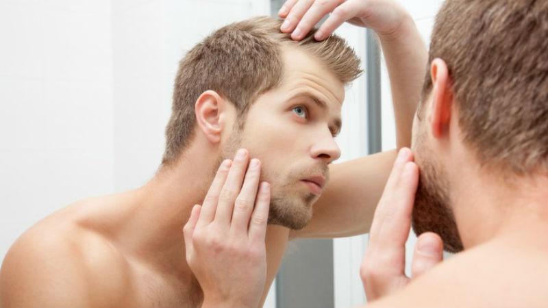 Hairline men