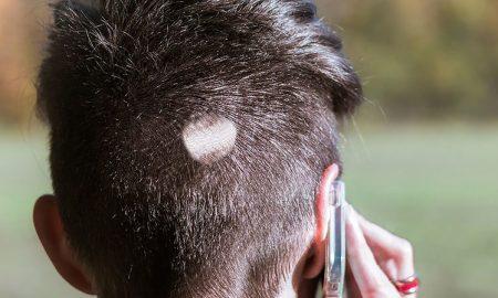 alopecia-areata-pelo-corto